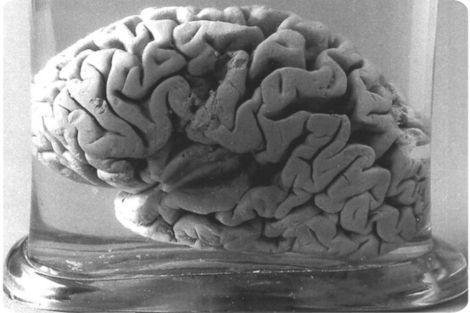 Cerebro de Louis Victor Leborgne (wikimedia commons)