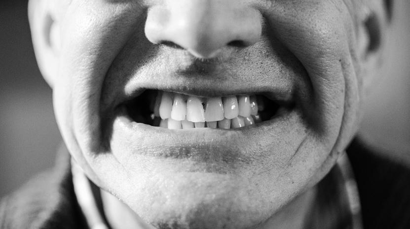 Dientes, dientes, eso es lo que les jode